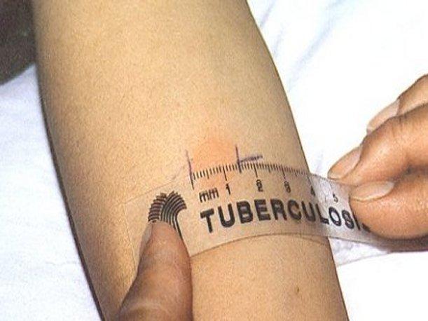 casos de tuberculosis: